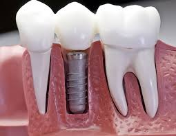 What risks are involved with dental implants?
