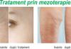 Tot ce trebuie sa stiti despre mezoterapie